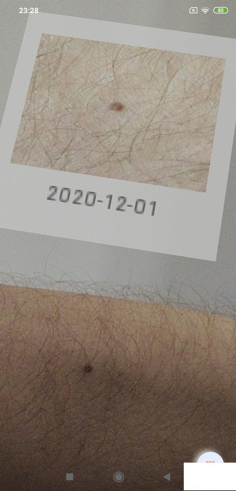 birthmark mole skin cancer photo